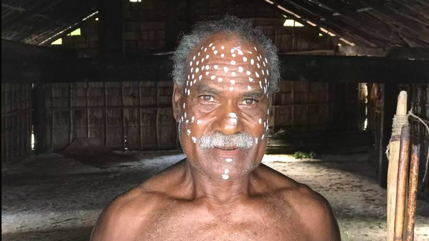 Man with white dots on his face